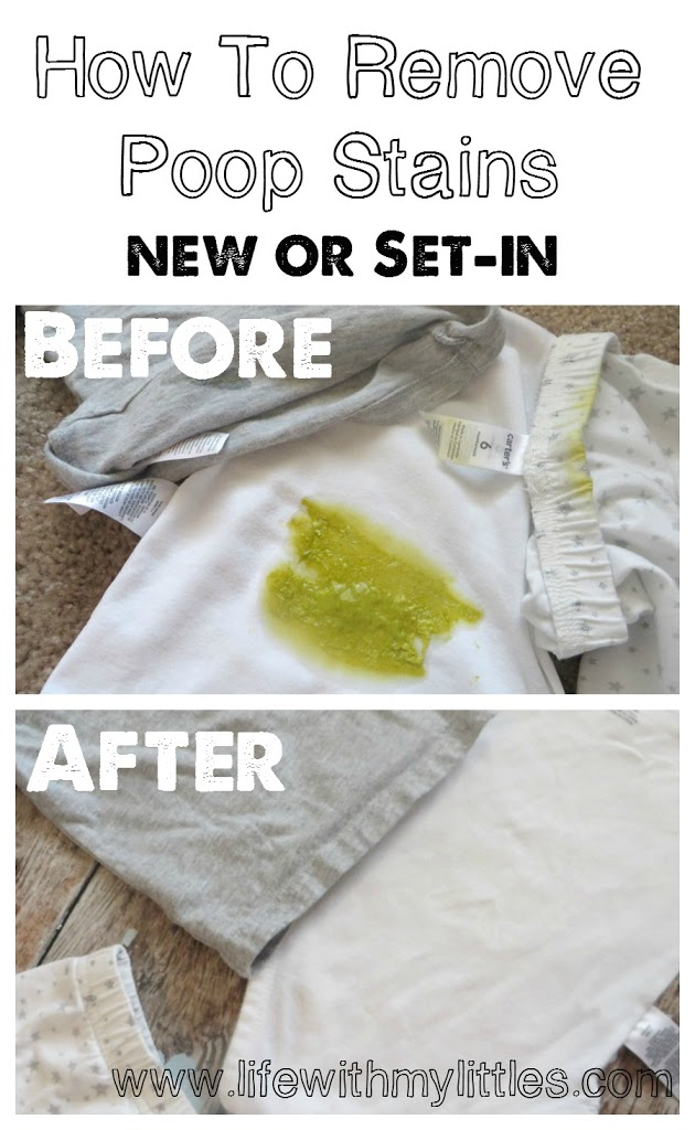 how-to-remove-poop-stains